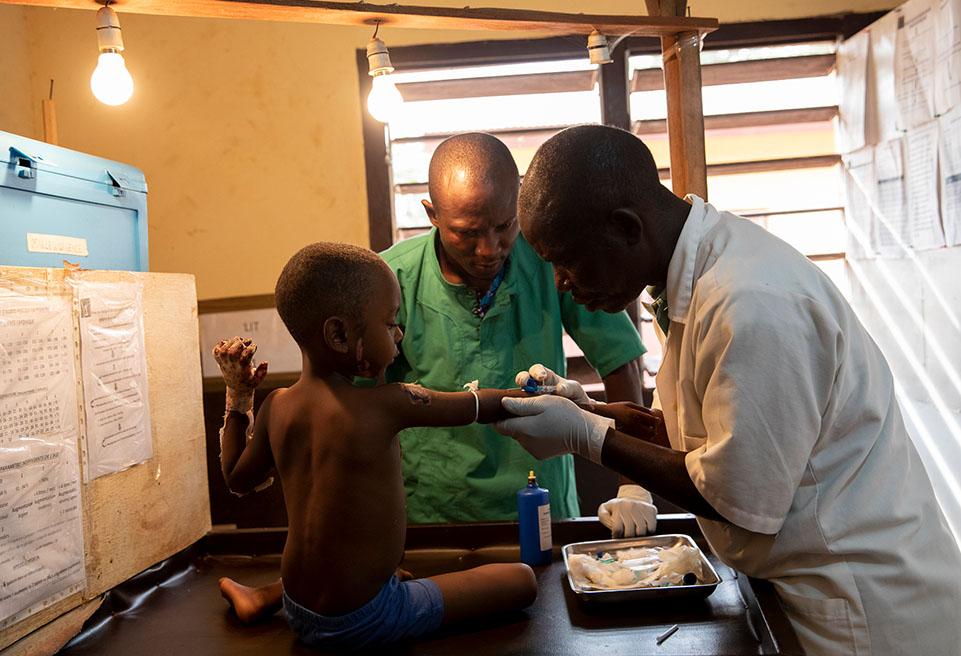 Zakaria, cinq ans, a été brûlée. Il est soigné dans l'unité de soins intensifs de l'hôpital de Boda.